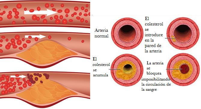 Colesterol en la sangre:  El bueno y el malo